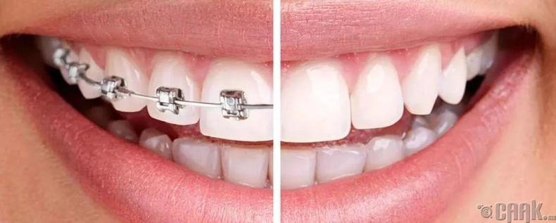 Шүдний аппарат зүүхэд насны хязгаар байдаг уу?