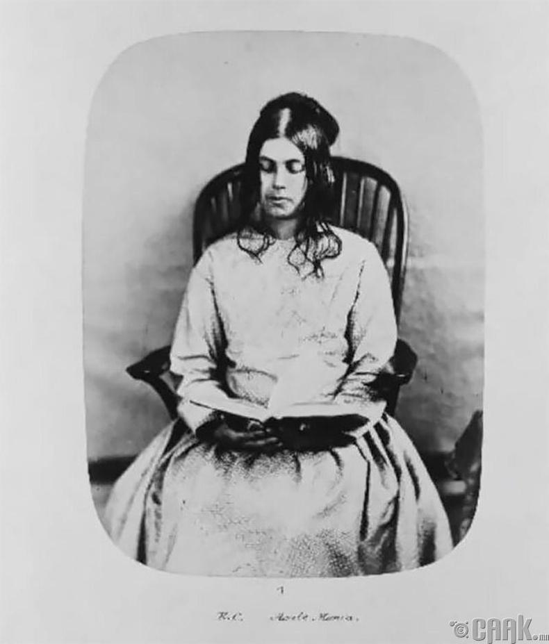 """Элиза Кемплин, 1857 онд """"архаг маниа""""- гаар орсон"""