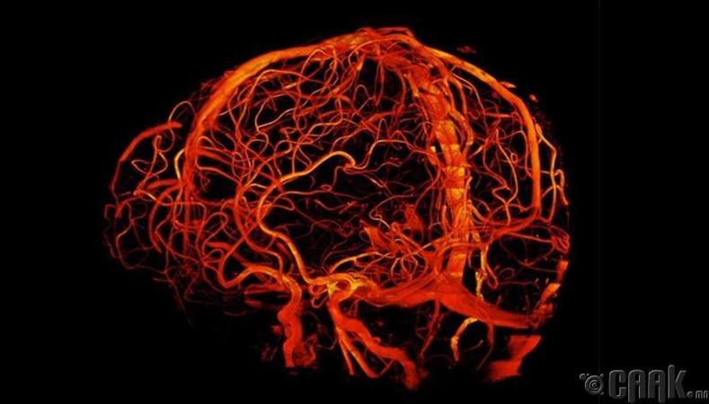 Тархины судсууд 7 теслагийн хүчирхэг томографын зурагт ингэж буужээ