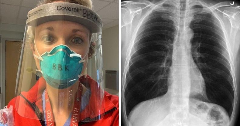 Америкийн мэс засалч КОВИД-19 туссан хүний уушгийг тамхи татдаг хүний уушгитай харьцуулан үзүүлжээ
