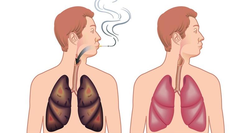 Биеэс тамхины хорыг хэрхэн гадагшлуулах вэ?