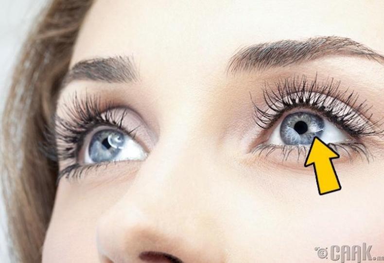 Нүдний болорт цагаан толбо үүсэх