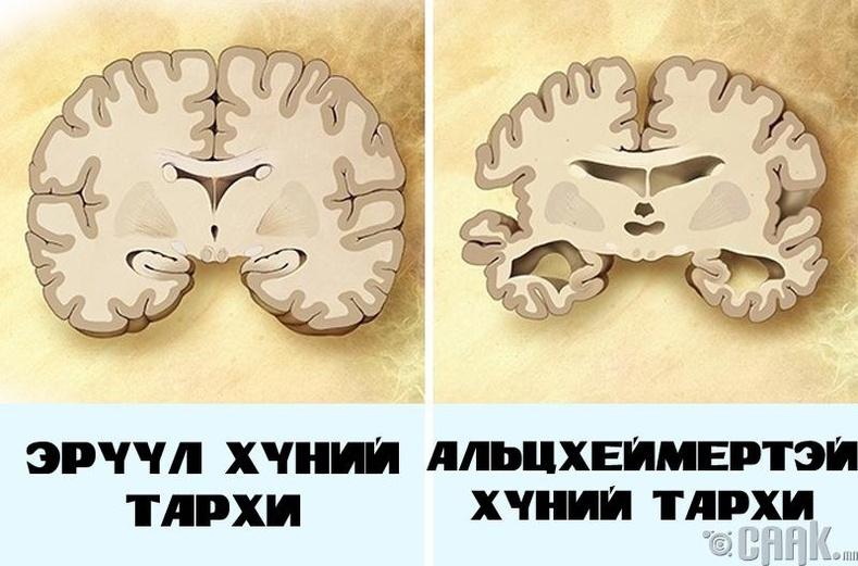Тархиа цэнэглэхгүй байх