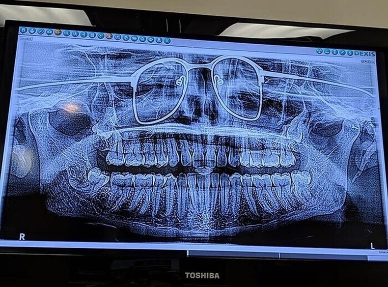 Шүдний рентген авхуулсан хүн шилээ авахаа мартсан нь