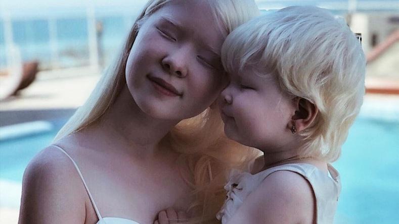 """Загварын ертөнцийн анхаарлыг татсан Казахстаны """"албино"""" эгч дүүс"""