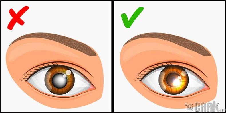 Нүдний даралт ихсэх