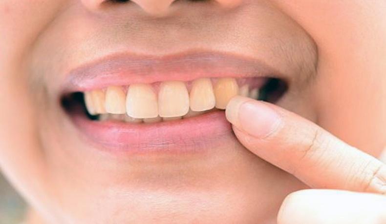 Шүдийг хамгийн их шарлуулдаг зүйлс