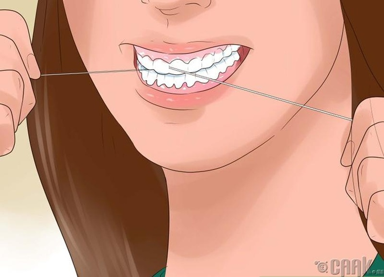 Шүдээ өдөр бүр шүдний утсаар цэвэрлэ