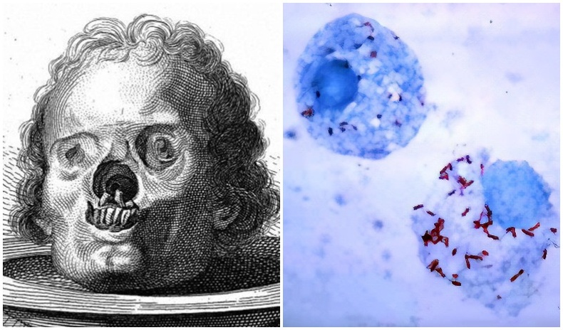 Хүн төрөлхтний хамгийн удаан тэмцэж буй 5 өвчин