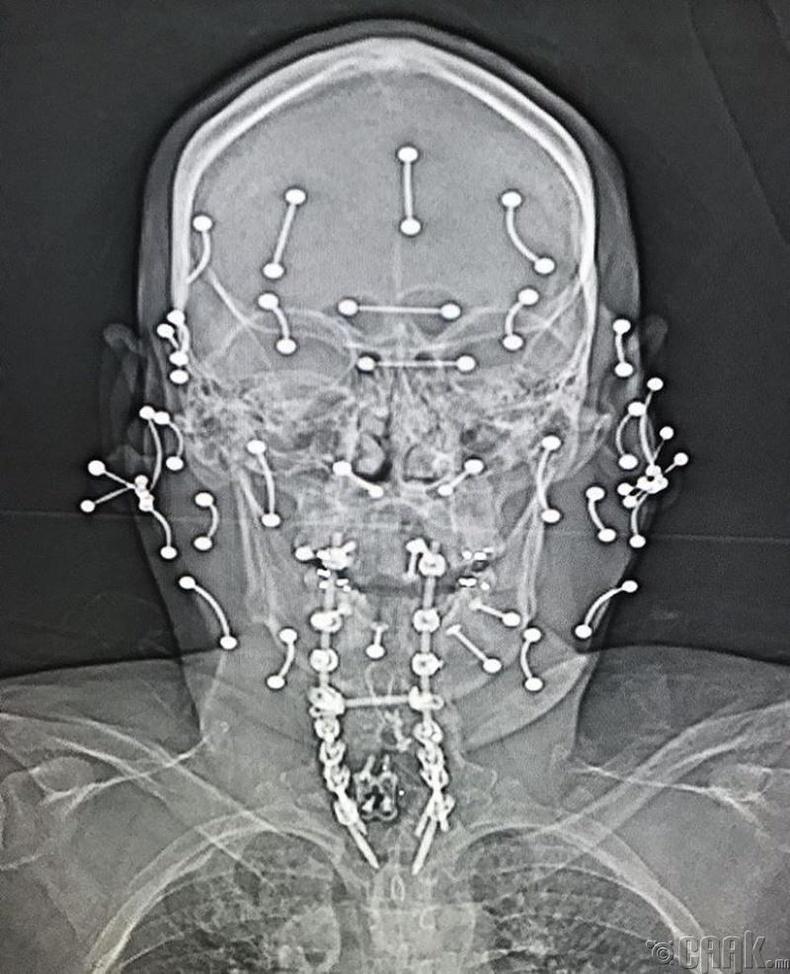 Пирсингтэй хүний рентген зураг