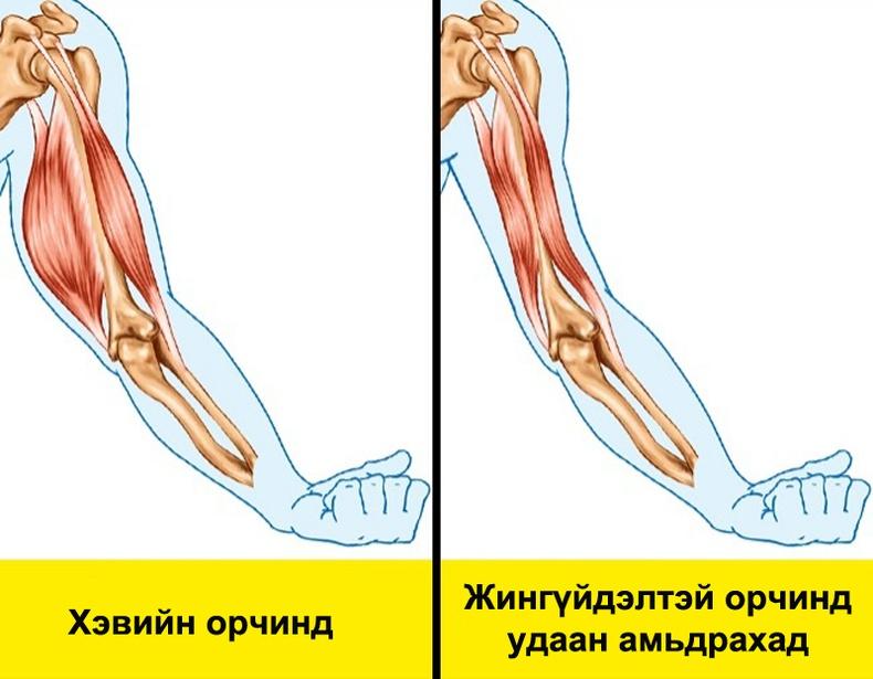 Жингүйдлийн үеийн булчин алдалт гэж юу вэ?