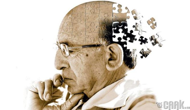Солиорол болон Алцхеймер