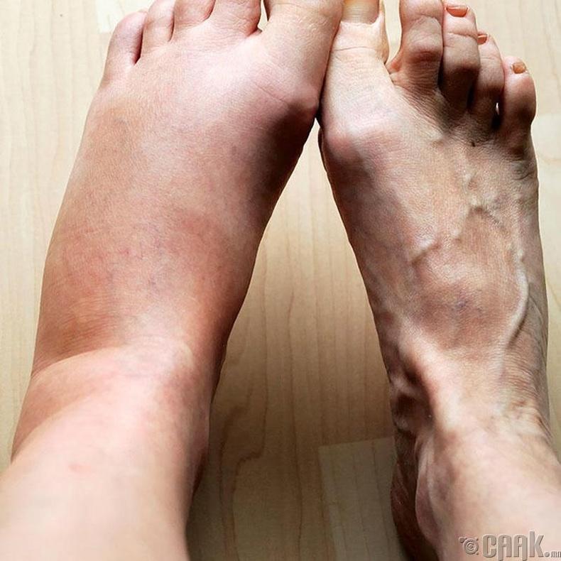 Хөл хавагнах