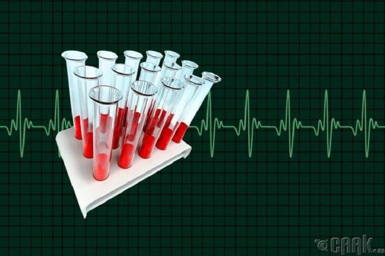 Удамшлын гаралтай зүрхний өвчинг мэдэх шинжилгээ