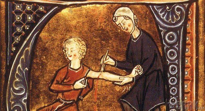 Дундад зууны үеийн Европын эмчилгээ
