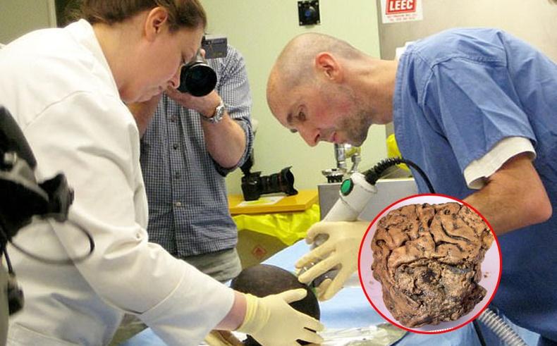 """Биологийн хуулийг зөрчсөн """"Хелсингтоны тархи""""-ны нууц"""