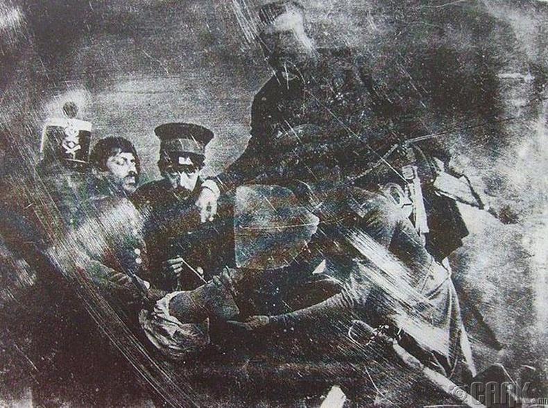 Хамгийн анхны эрхтэн тайралтын зураг