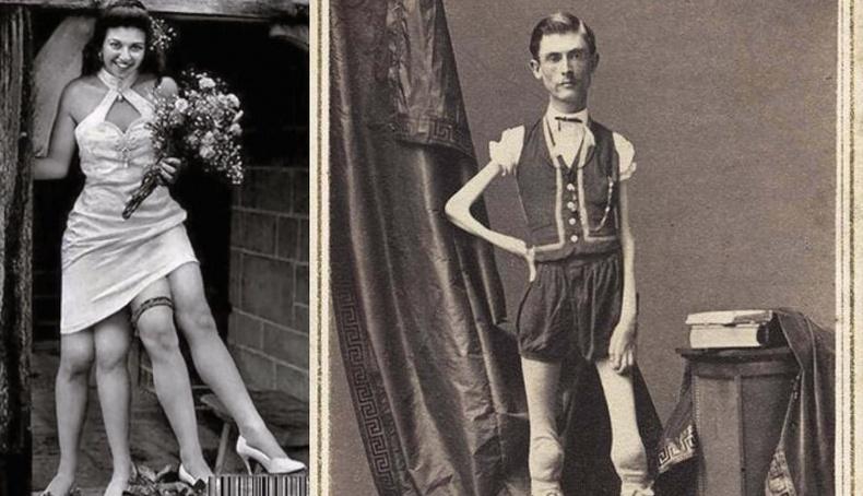 """19-р зууны үеийн """"Гаж хүмүүсийн цирк""""-ийн үнэн түүх"""