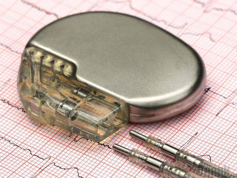 Зүрхний электрон төхөөрөмж