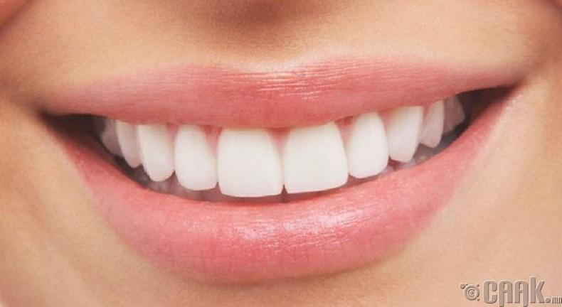 Шүдний аппарат зүүсэн байхад яагаад байрлал нь солигддог вэ?
