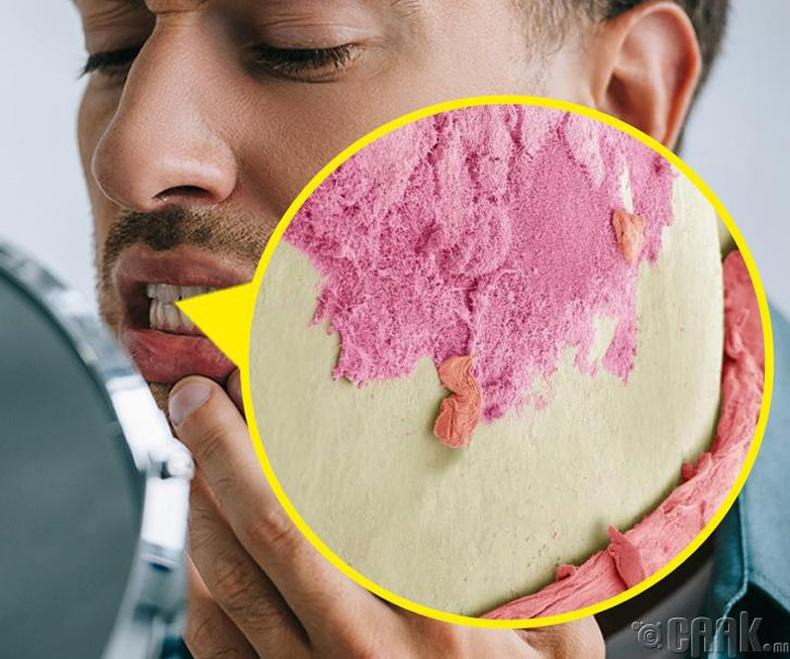 Таны шүд бактерийн бүрхүүлтэй