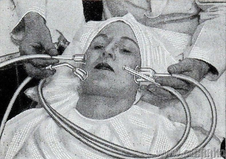 Арьсийг толигор болон гоё өнгөтэй болгодог нүүрний вакууман массаж. 1930 он.