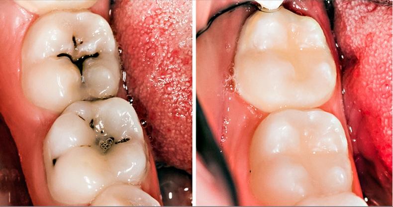 Шүд хорхойтохоос хэрхэн сэргийлэх вэ?