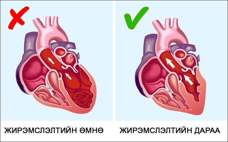 Жирэмсэн эхчүүд зүрхний эмгэгээсээ салдаг