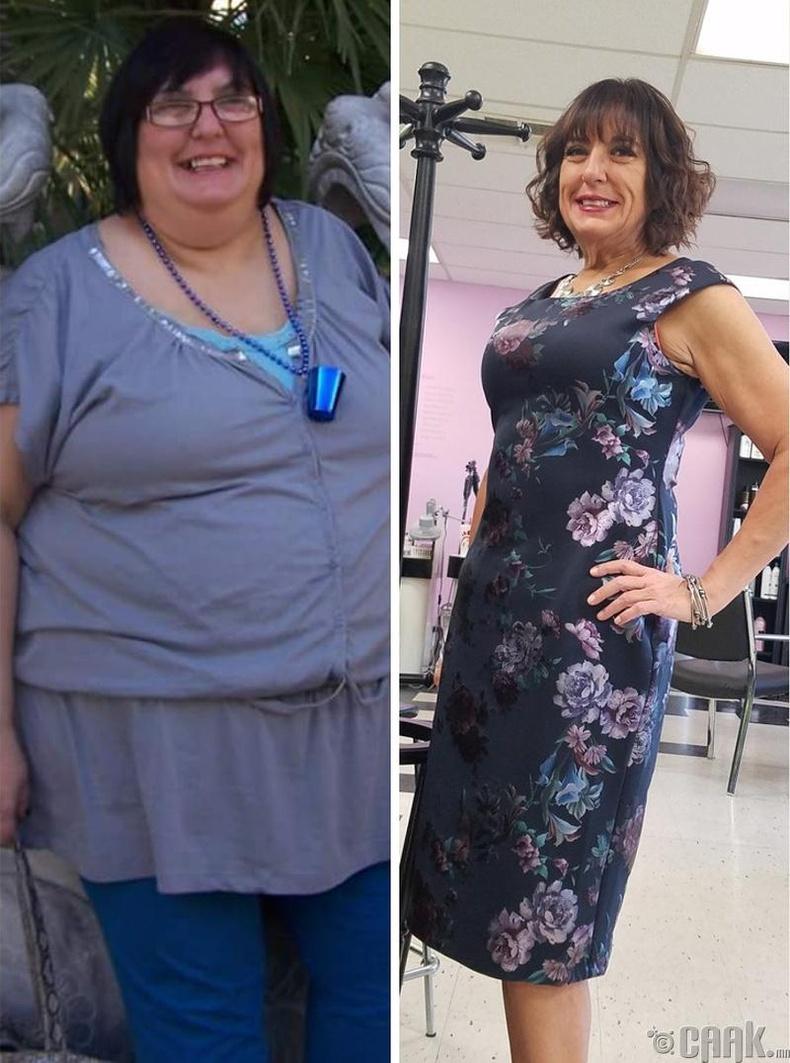 1 жил 8 сарын дотор 73 кг хасаж чадсан эмэгтэй
