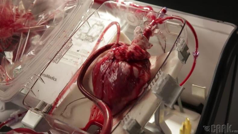 Хүний зүрх- 997,000 доллар