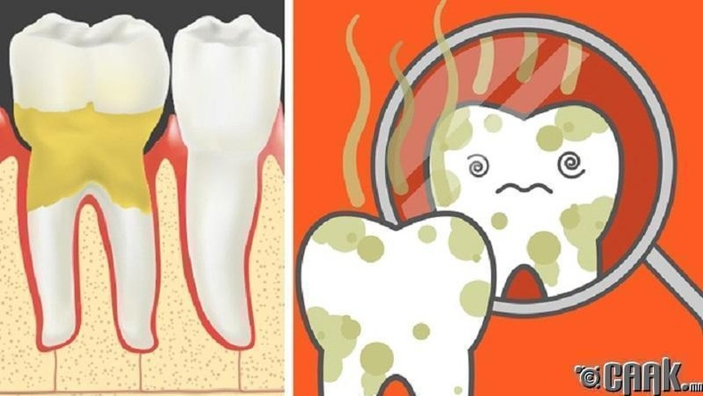 Буйл өвчлөх - Шүд өмхийрсөн мэт үнэртэх