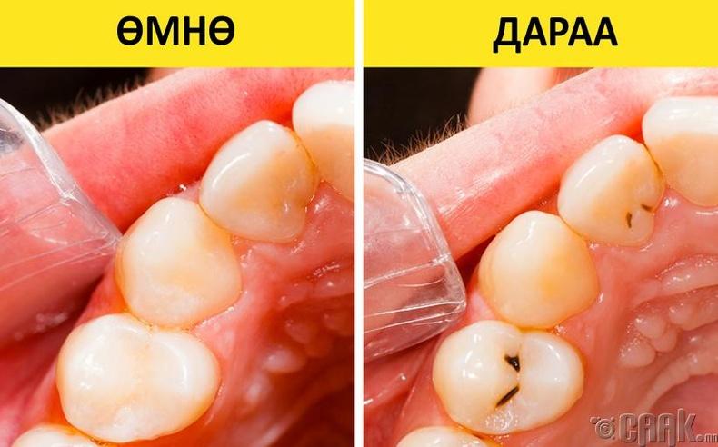 Эмзэг шүд