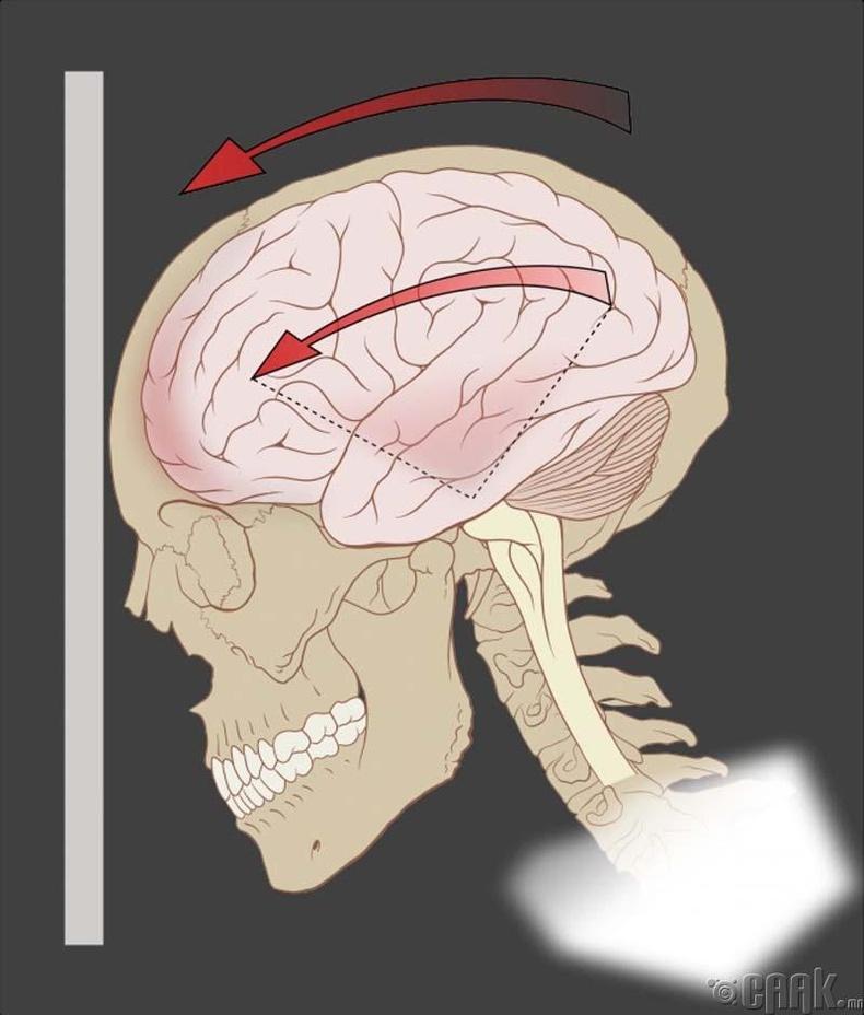 Толгойндоо цохиулвал тархи хөдөлнө