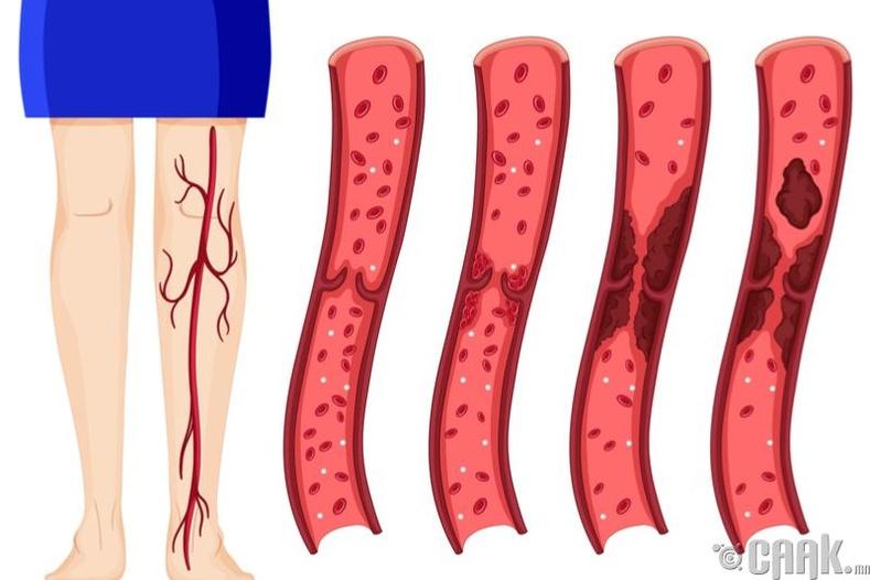 Хөлний венийн судасны тромбоз
