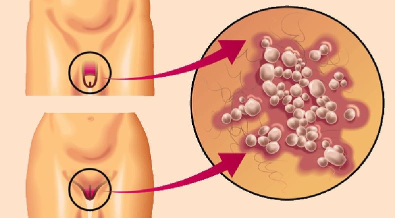 Мөөгөнцрөөс хэрхэн сэргийлж, эмчлэх вэ?
