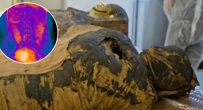 Урьд байгаагүй олдвор:  Эртний Египетийн нэгэн мумми жирэмсэн байсныг тогтоожээ