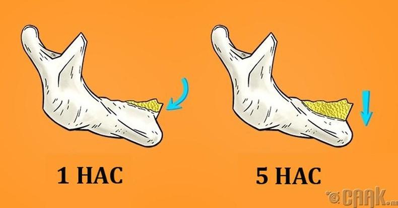 Ямар ч шүдгүй болвол биед юу болох вэ?