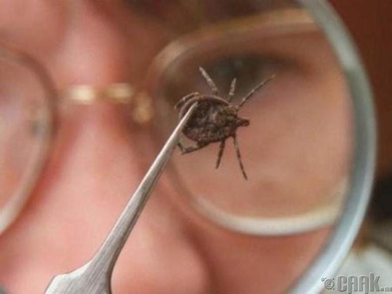 Биед шимэгч хорхой байгааг хэрхэн мэдэх вэ?