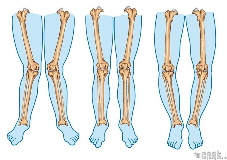 Майга хөлтэй болохоос сэргийлж чадах уу?