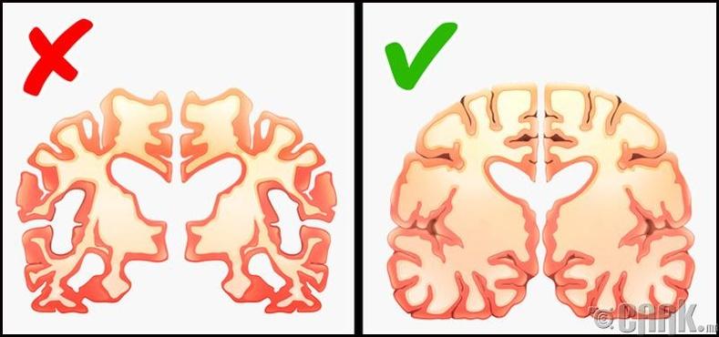 Альцгеймерийн өвчин
