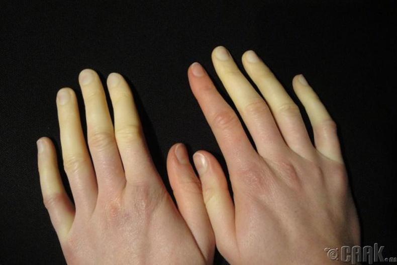 Гар, хурууны өнгө өөрчлөгдөх