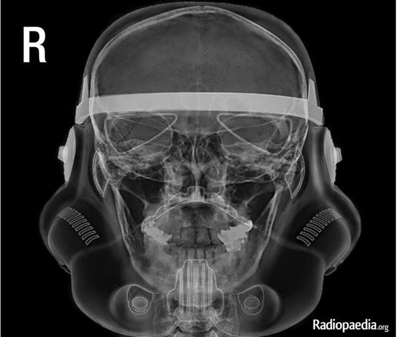 Бонус: Хөгжилтэй рентген зураг