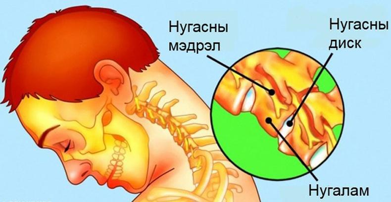 Хүзүү хөшилтийг арилгах супер 9 арга