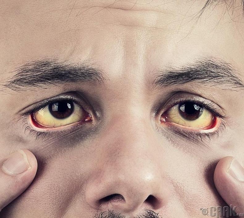Нүдний цагаан шарлах