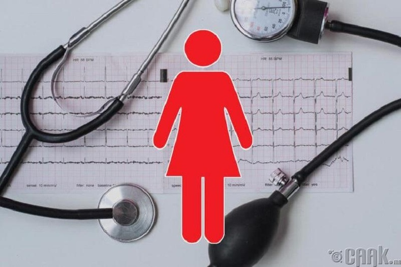 Зүрхний шигдээсээр эмэгтэйчүүд илүү их нас бардаг
