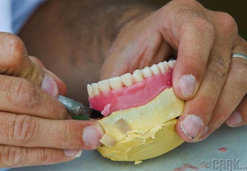 Хиймэл шүдний мэргэжилтэн