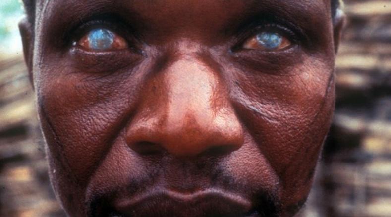Хүнд халдварладаг хамгийн аймшигтай 10 шимэгч хорхой