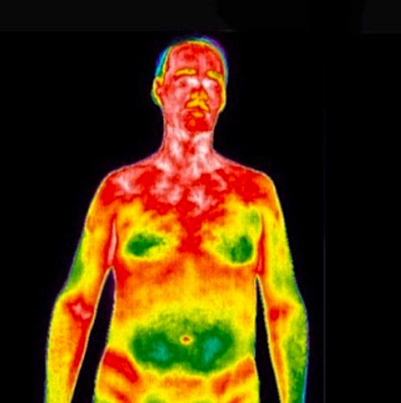 Дархлааны системийг уг дулаан мэдрэгч камераар харж болно. Улаан, цагаан өнгөтэй газрууд нь үрэвслийг харуулж байна
