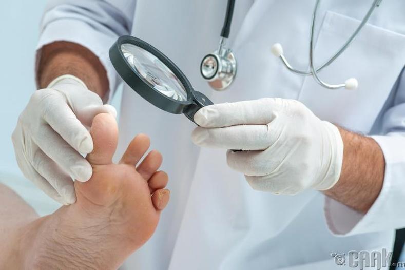 Хөл, гарын мөөгөнцөр үүсэхээс сэргийлнэ