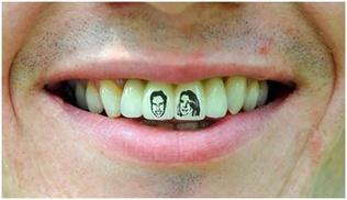 Америкчууд шүдэндээ шивээс хийлгэдэг болжээ